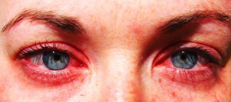 Бывает ли аллергия на попугаев